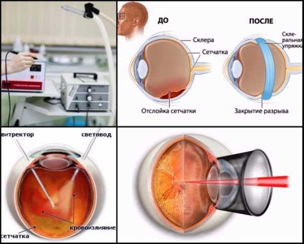 На фото примеры операций при отслоении сетчатки: диатермокоагуляция, пломбирование склер, витректомия и лазерная коагуляция
