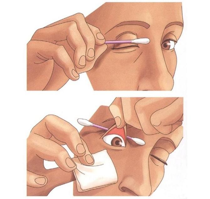 Как правильно промыть глаз