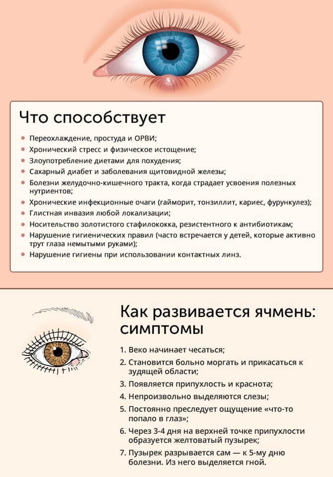 Что способствует появлению ячменя, симптомы