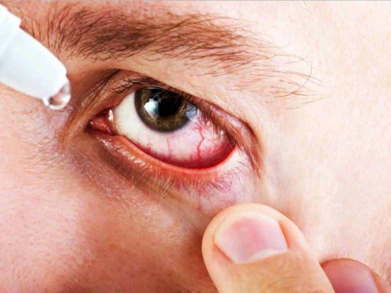 «Нормакс» – глазные капли