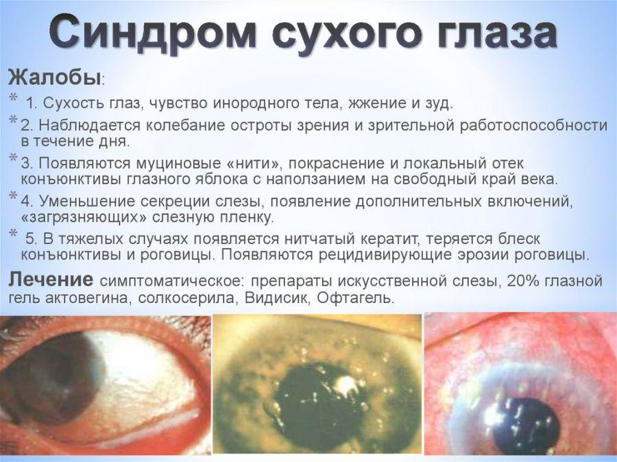 «Синдром сухого глаза»