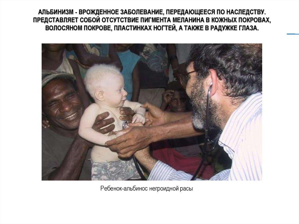 Альбинизм - врожденное заболевание, передающееся по наследству
