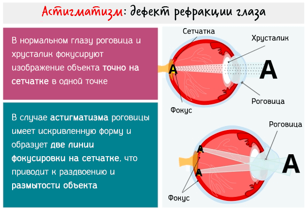 Астигматизм - дефект рефракции глаза