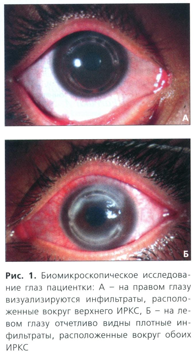 Биомикроскопическое исследование глаз пациентки