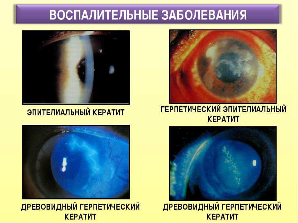 Виды кератита глаз