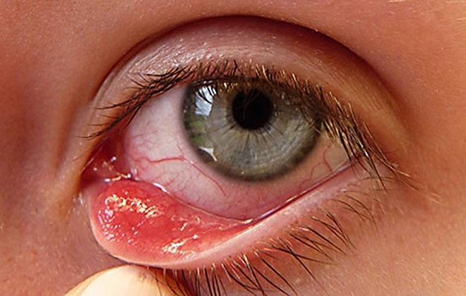 Возможно развитие аллергической реакции