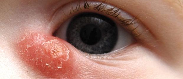 Воспаление слезного канала у малыша