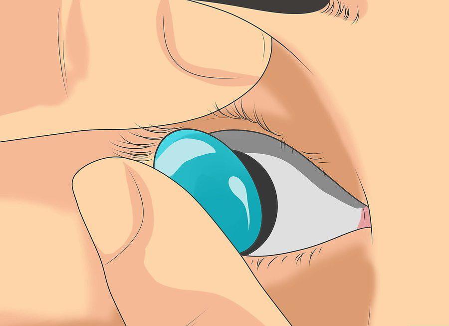Вставляется контактная линза