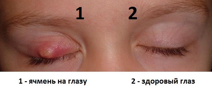 Глаз, пораженный ячменем, и здоровый глаз