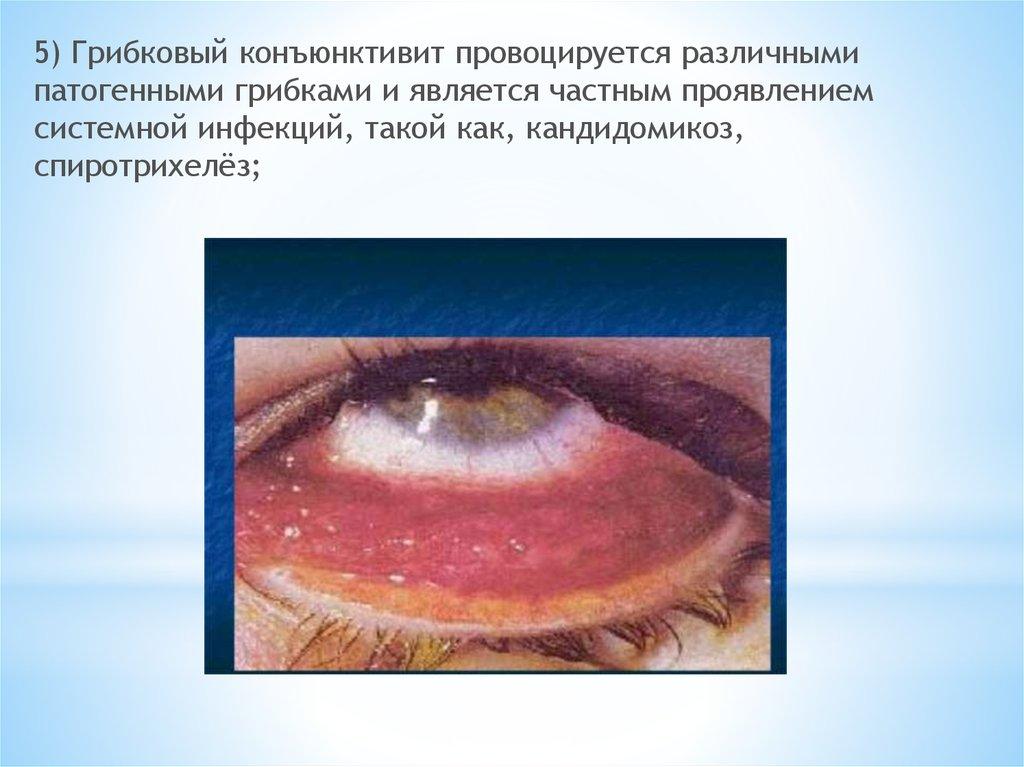 Грибковый конъюнктивит провоцируется различными патогенными грибками