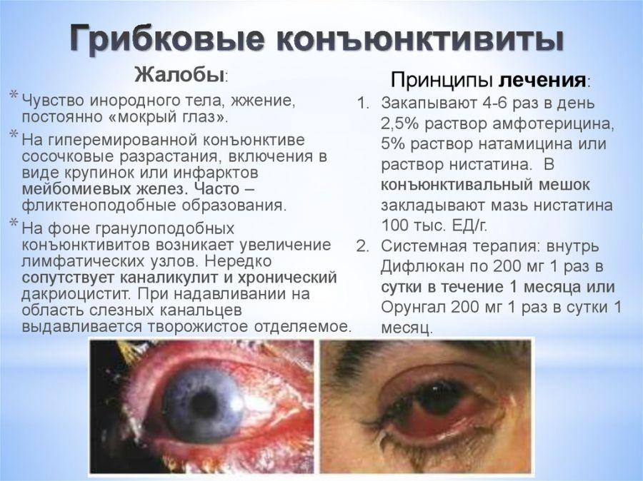 Грибковый конъюнктивит