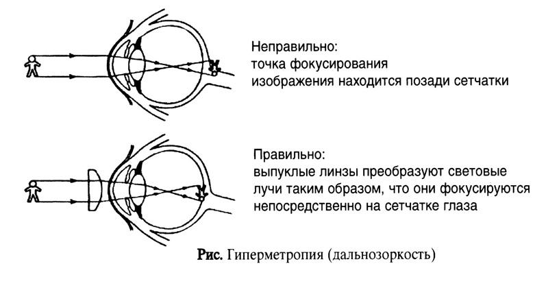 Дальнозоркость (гиперметропия)