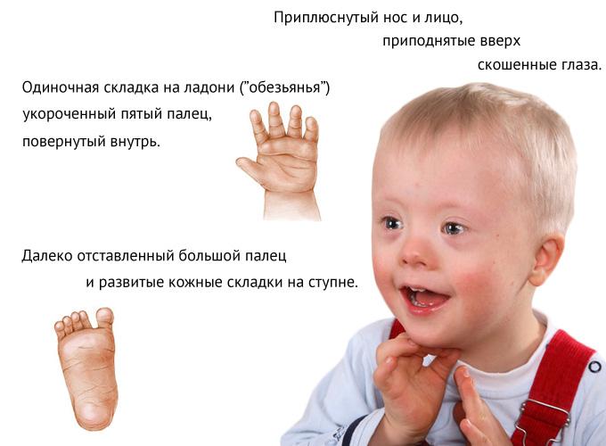 Диагностика синдрома Дауна