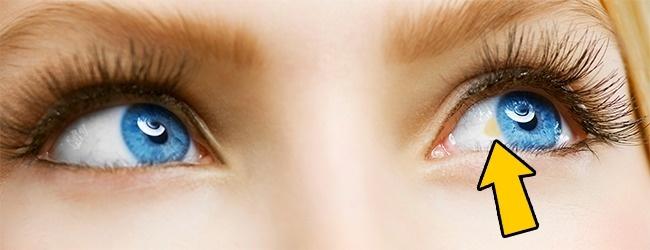 Желтоватое пятно возле радужной оболочки глаза