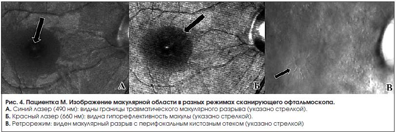 Изображение макулярной области в разных режимах сканирующего офтальмоскопа