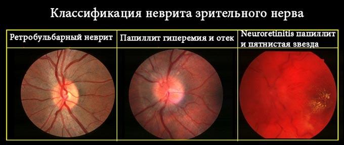 Классификация неврита зрительного нерва