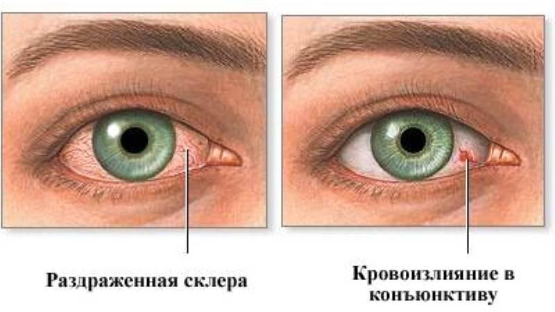 Лопнул капилляр в глазу - что делать