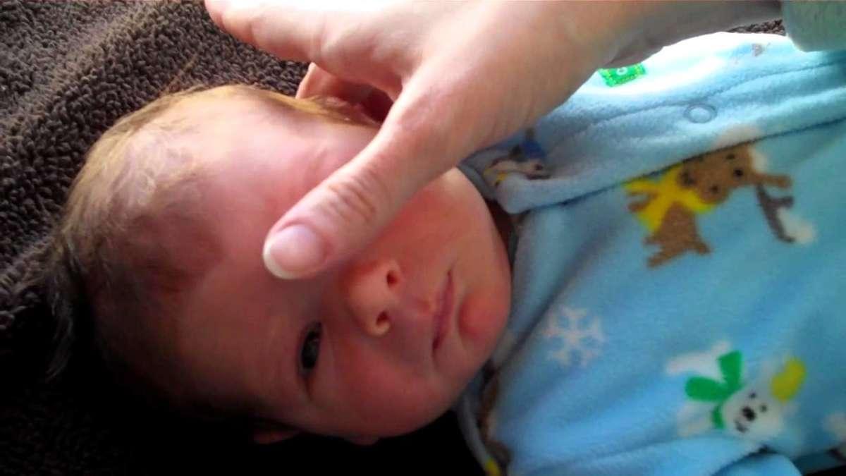 Массаж слезного канала новорожденного