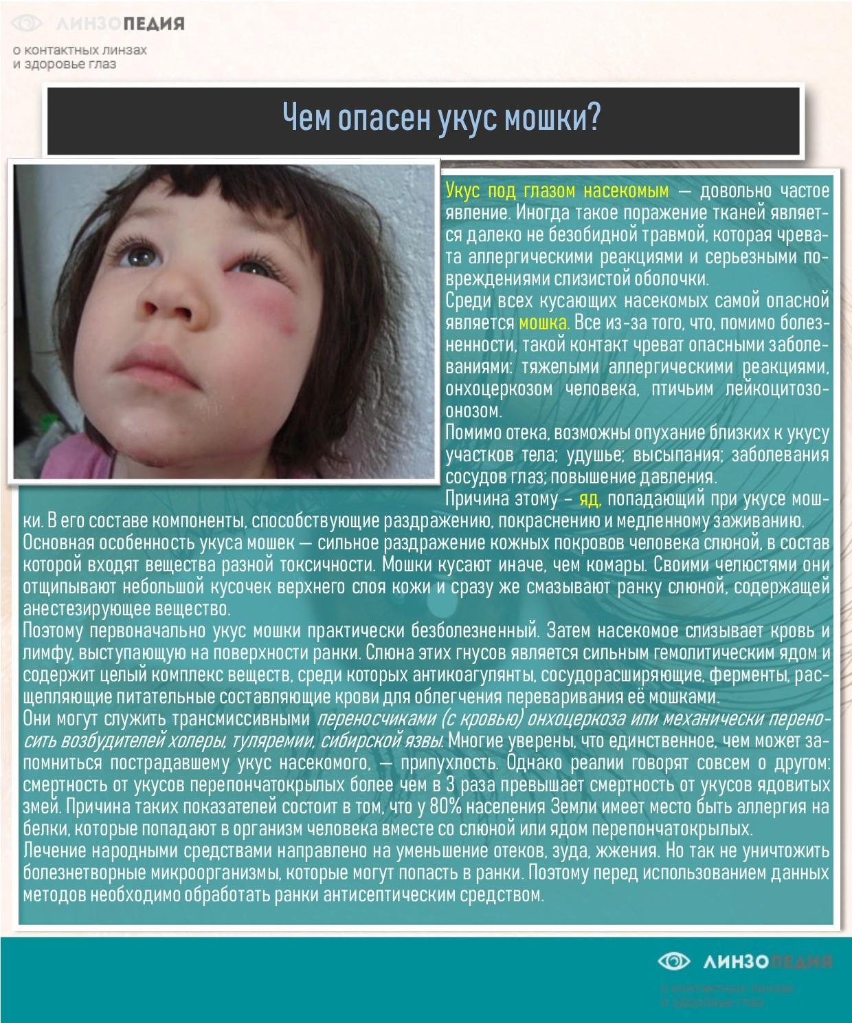 Чем опасен укус мошки под глазом?