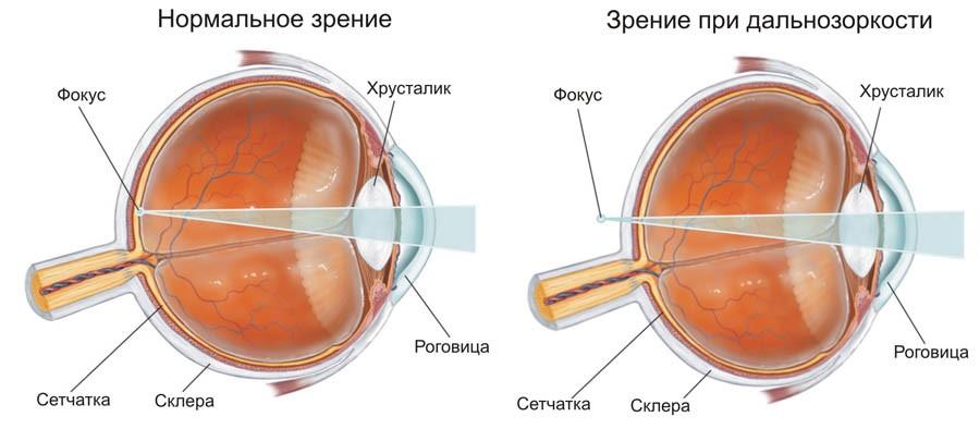 Нормальное зрение и зрение при дальнозоркости