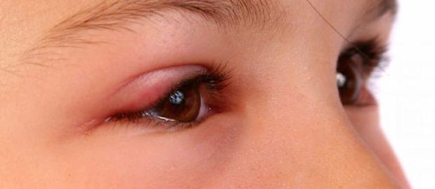 Опух глаз после укуса мошки