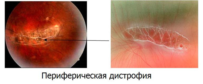 Периферическая хориоретинальная дистрофия сетчатки глаза (ПХРД)