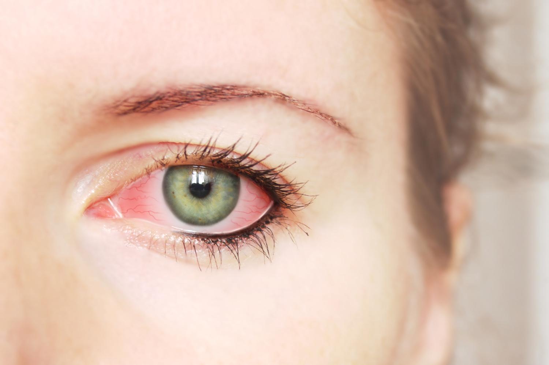 Покрасневший глаз - первый сигнал о необходимости закапать глазные капли