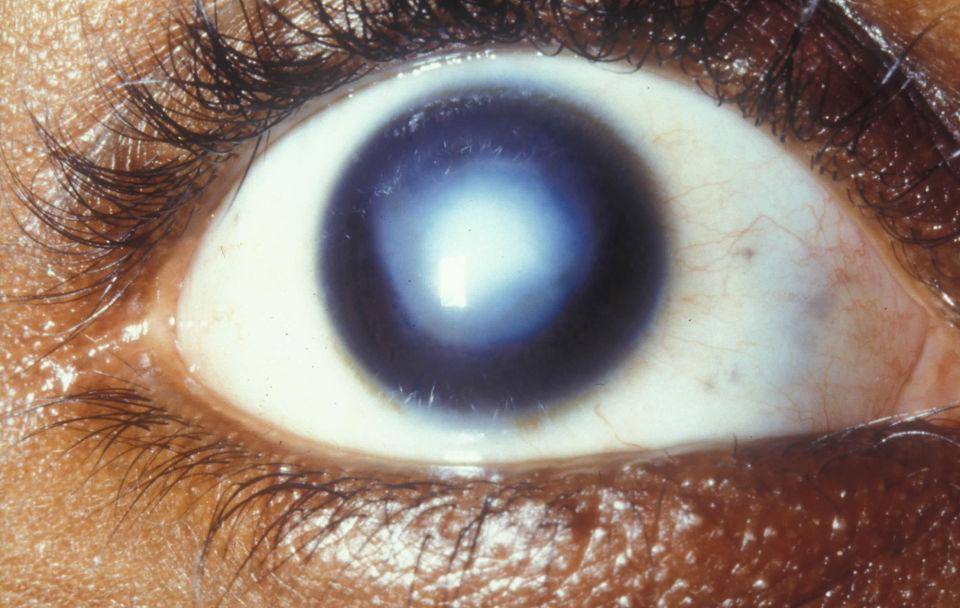 Помутнение роговицы глаза человека