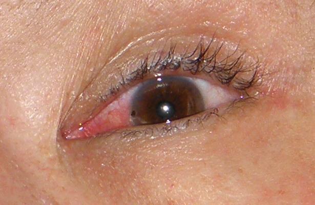 Попадание окалины в глаз после сварки