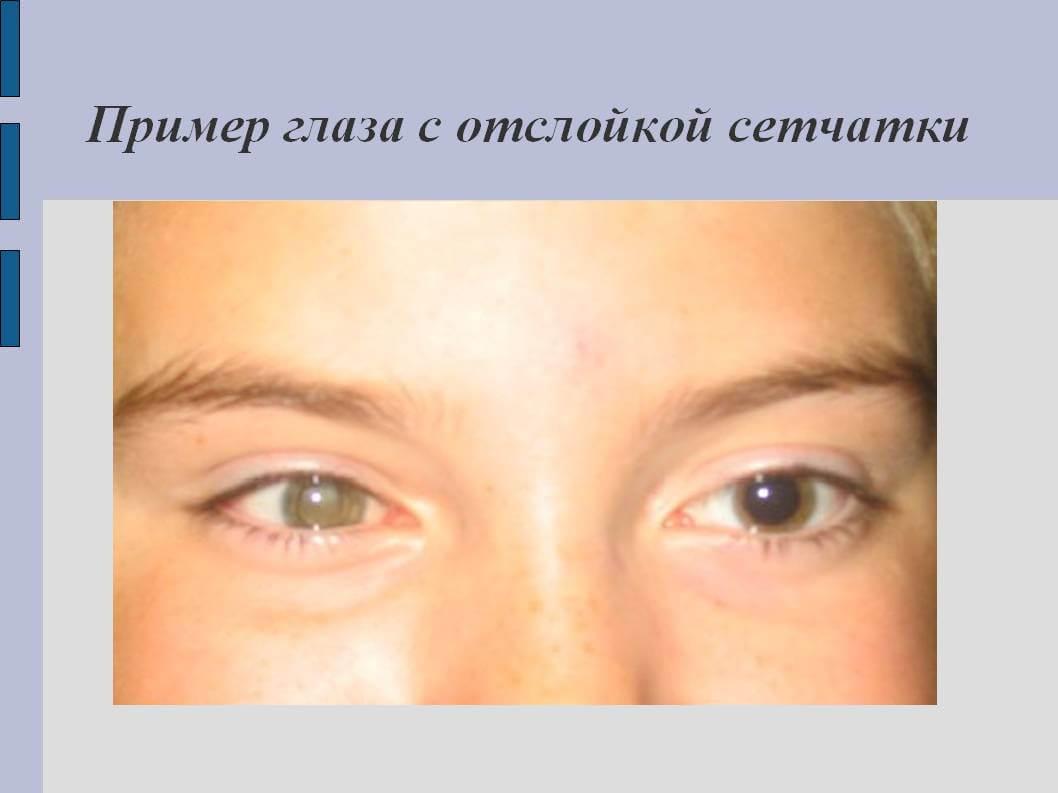 Пример глаза с отслойкой сетчатки