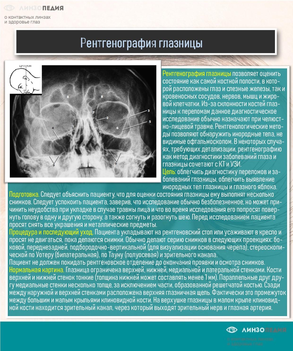 Рентгенография глазницы