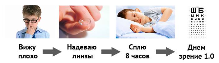 Рефракционная терапия