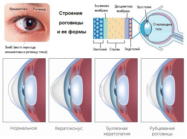 Роговица глаза человека (строение и формы)