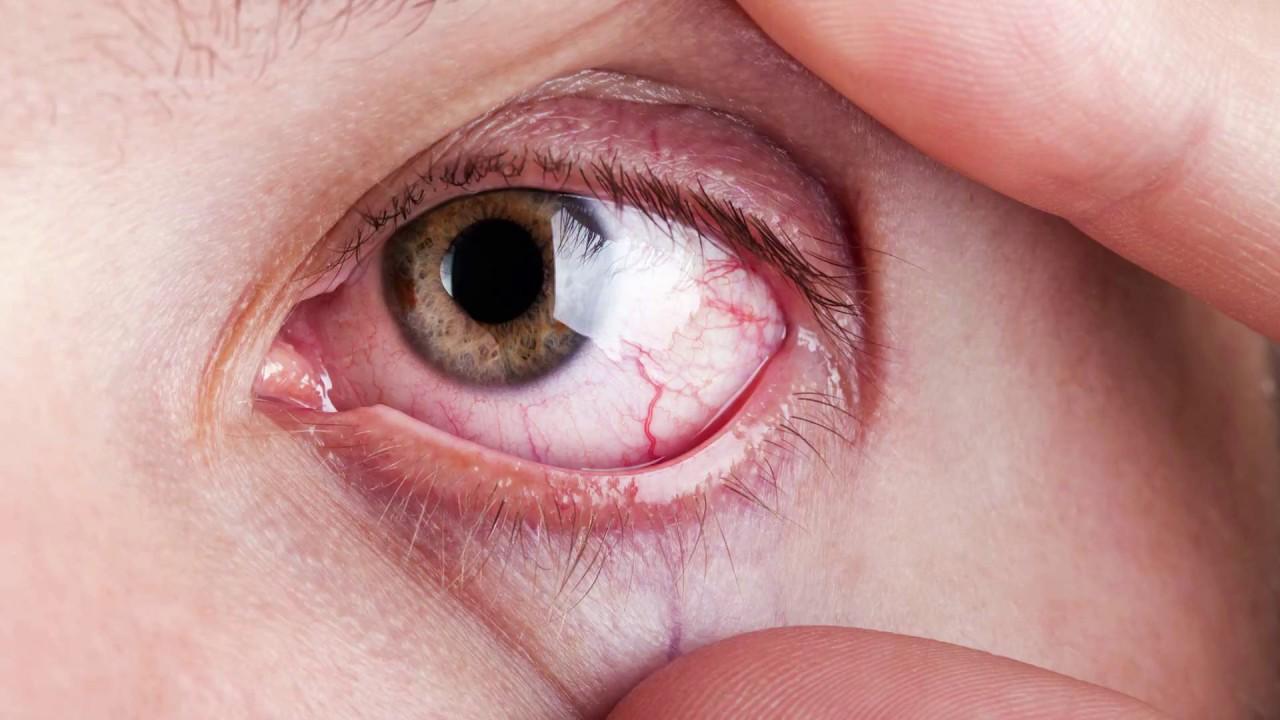 Симптомы синдрома сухого глаза - покраснение, зуд, жжение