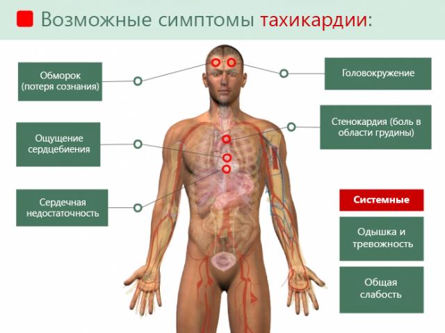 Симптомы тахикардии