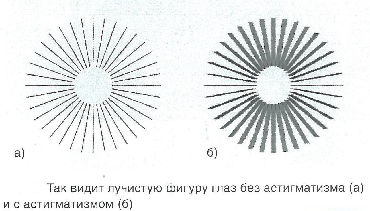 Тест на определение астигматизма