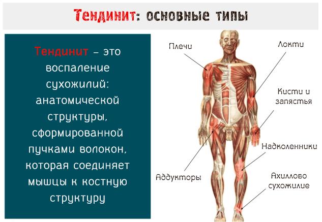 Типы воспалений при тендините