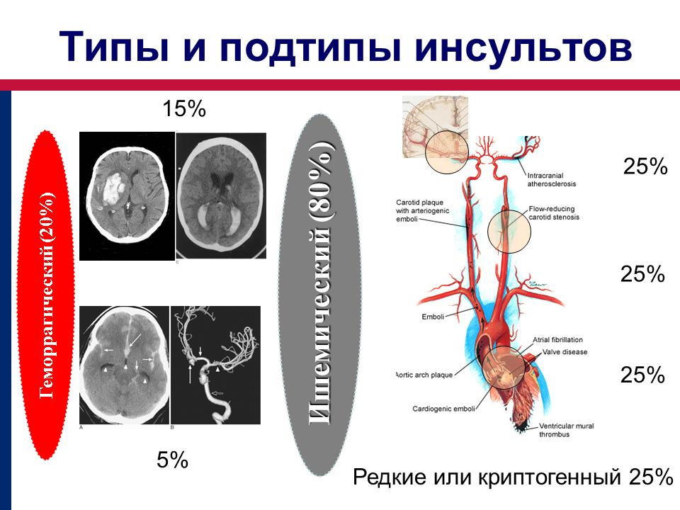 Типы и подтипы инсульта