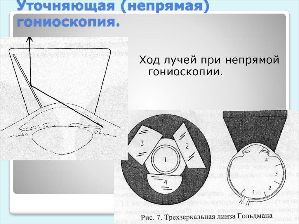 Уточняющая (непрямая) гониоскопия