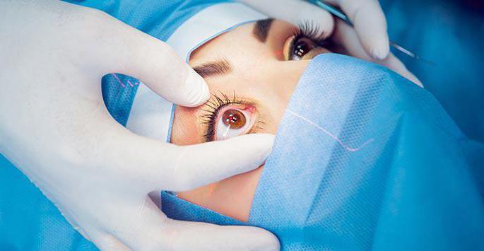 Хирургическое лечение миопии