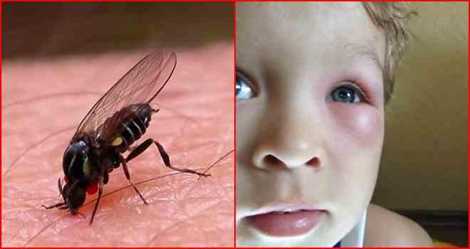 Что делать, если мошка укусила ребенка