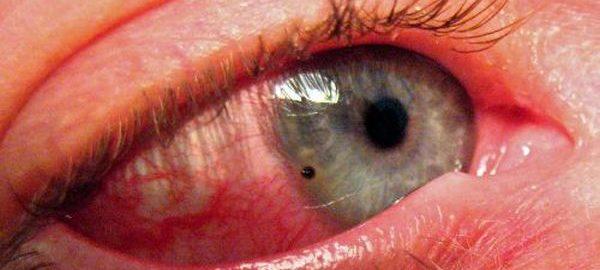 Повреждение роговицы глаза
