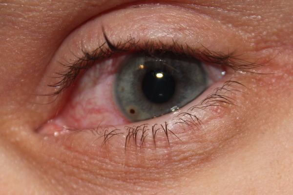Как вытащить окалину из глаза?