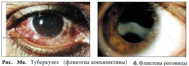 Туберкулез (фликтена конъюнктивы); б. Фликтена роговицы