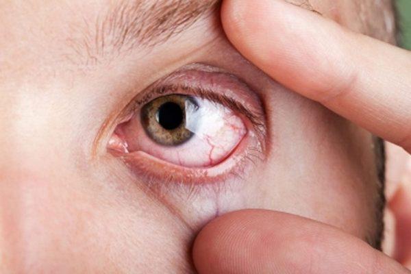 Повышенная светочувствительность обычно проявляется при каких-либо патологиях, связанных с глазами