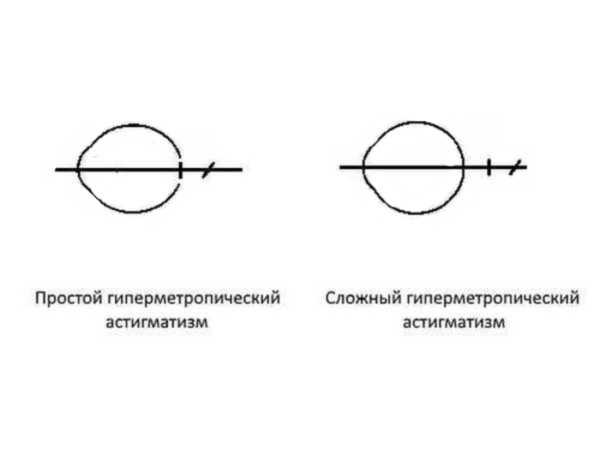 Существуют простая и сложная формы такого вида астигматизма
