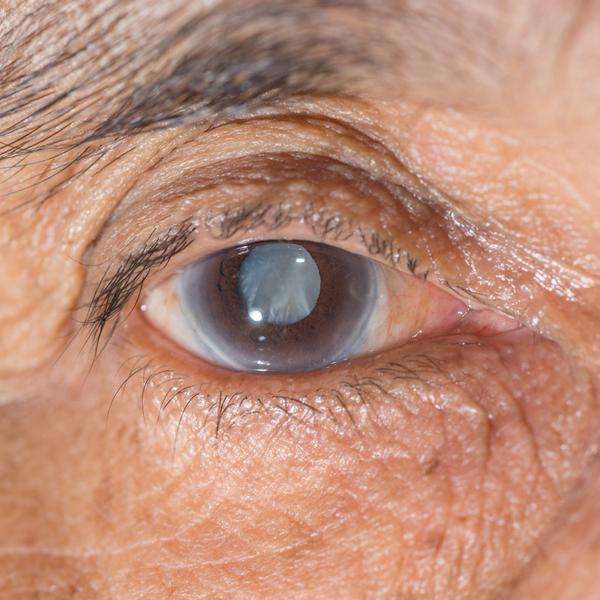 Глаукома – «опасность номер один» для глаз