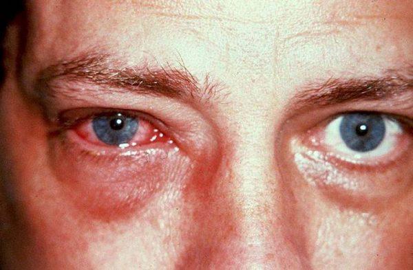 С помощью фурацилина можно вылечить блефарит, конъюнктивит и различные воспаления глаз