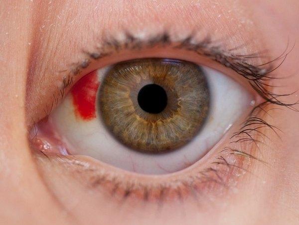 Существует множество причин повреждения роговицы глаза