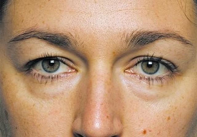 Часто припухлость под глазами появляется из-за неполноценного отдыха